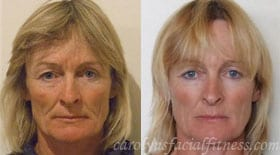 Andrea, Before and After 10 months of Facial Exercises