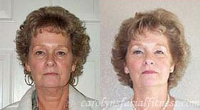 Tanya, Before and After 6 months of Facial Exercises