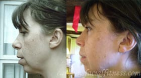 Kate, Before and After 4 months of Facial Exercises